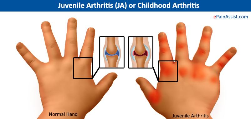 """Artrite Reumatóide forma juvenil: a máxima """"quem gosta de velho é reumatismo"""" não éreal!"""