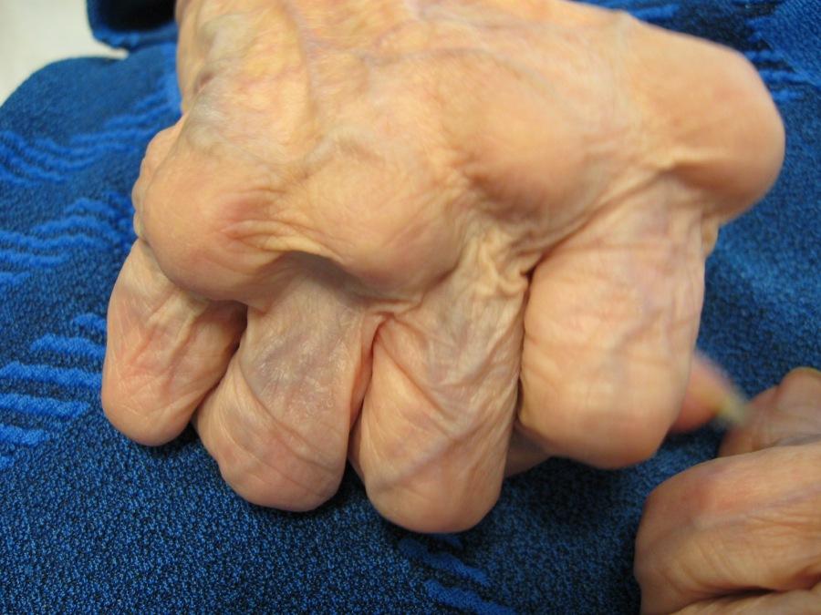 Artrite Reumatóide uma visãogeral.