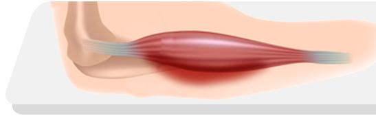 Quando os músculos inflamam e fraquejam: asmiosites