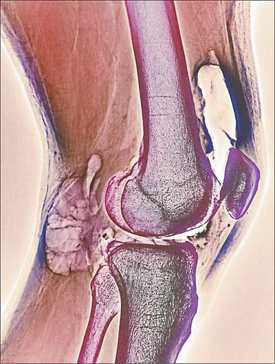 Fisiopatogenia da artrite reumatóide em vídeo: o que acontece no interior dasarticulações?