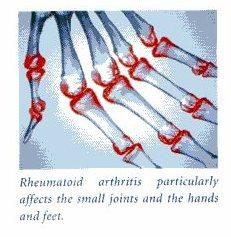 Artrite reumatóide para clínicos gerais: sinais dealerta!