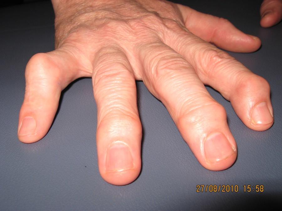 Artrose: mais um suplemento que prometemelhoras