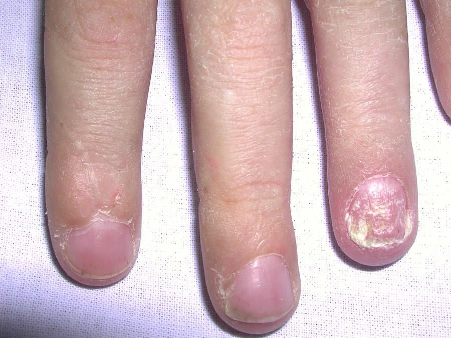 Qual a prevalência de artrite nos pacientes compsoríase?